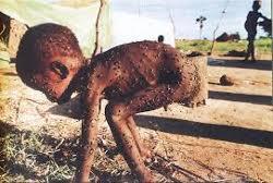 Niño cubierto de moscas. Sudán, 1998. Hans-Jürgen Burkard (licricardososa.wordpess.com)